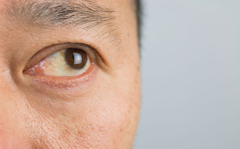 ​Cornea-Related Eye Conditions - Doctor Q&A