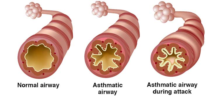 How asthma affects the airway.