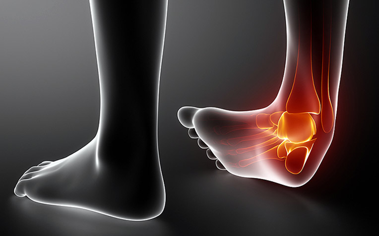 /sites/hexassets/Assets/bones-joints/ankle-sprain-treat-promptly-to-prevent-arthritis.jpg