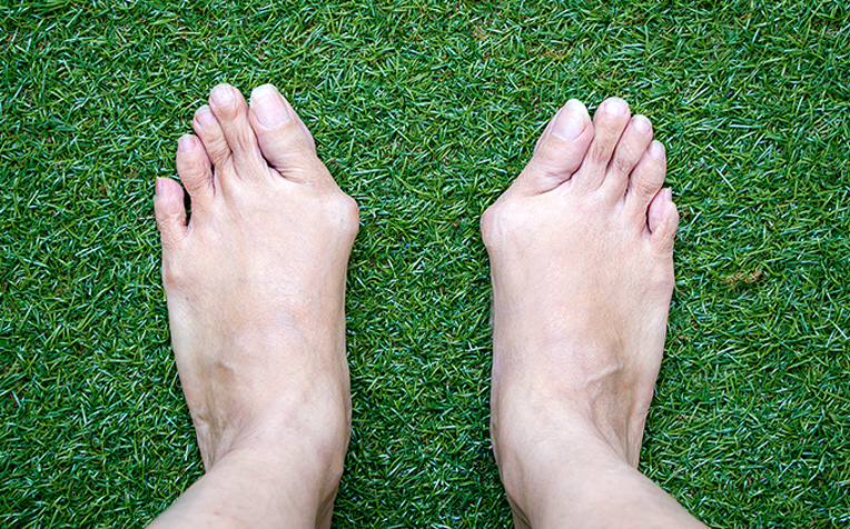 ​Keyhole Surgery to Treat Bunions