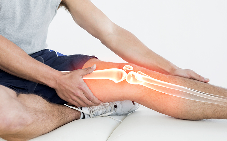 Common Knee Injuries: Knee Osteoarthritis