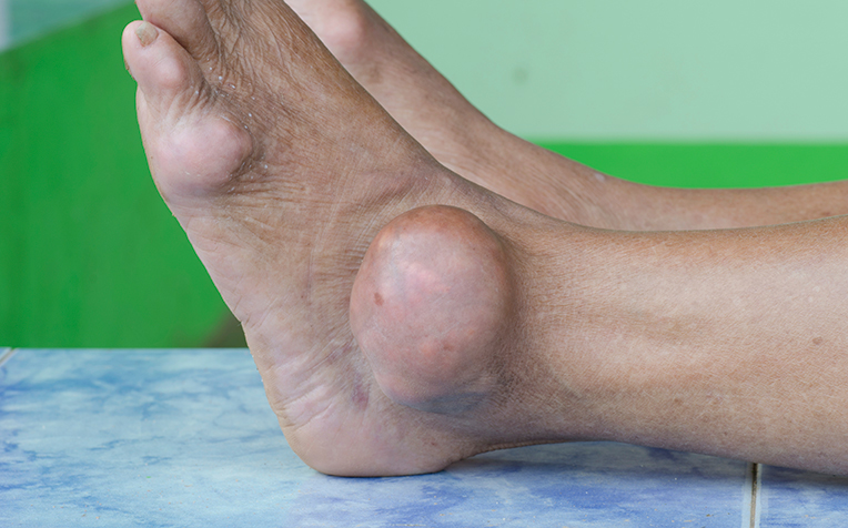 Gout: Causes, Symptoms, Treatment