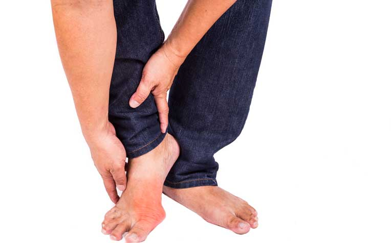 Gout: Is There a Cure?