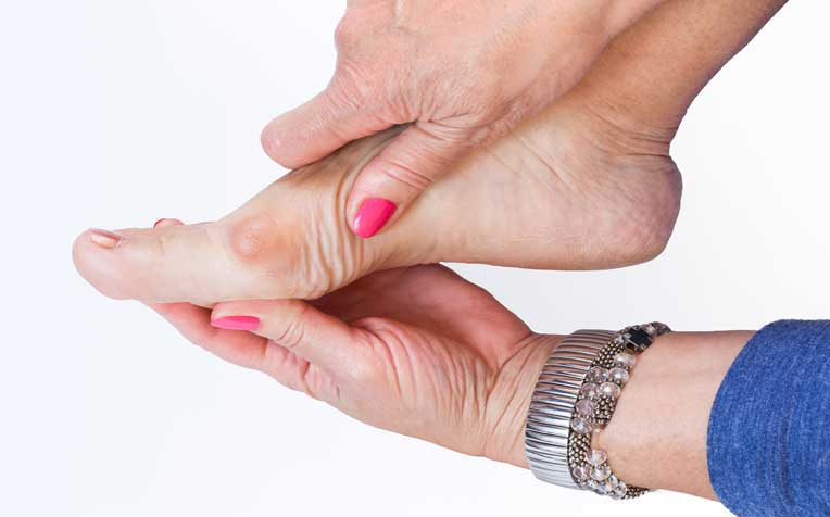 /sites/hexassets/Assets/bones-joints/how-to-treat-foot-bunions.jpg