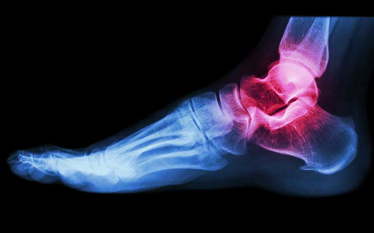 ​​Common Foot and Ankle Problems