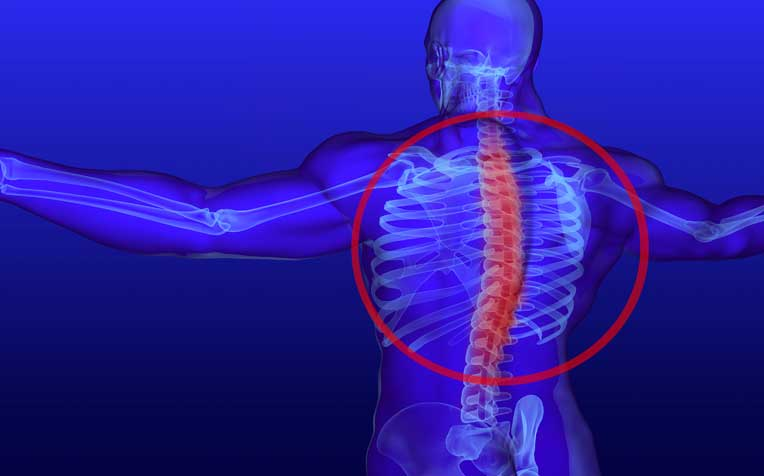/sites/hexassets/Assets/bones-joints/scoliosis-a-machine-helps-patients-breathe-properly.jpg