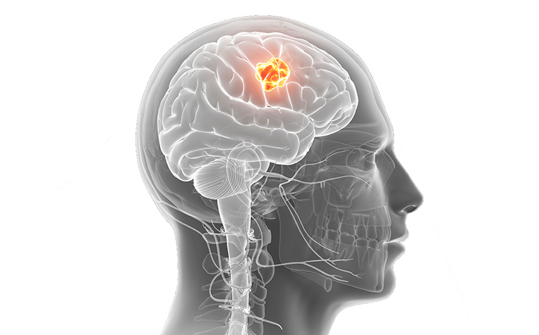 Brain Tumour: Causes and Symptoms