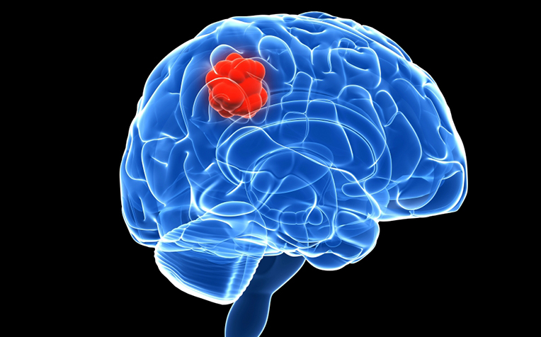 Brain Tumour: Risk Factors, Symptoms, Treatment