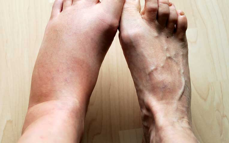 Lymphatic Drainage Massages Can Help Reduce Swelling