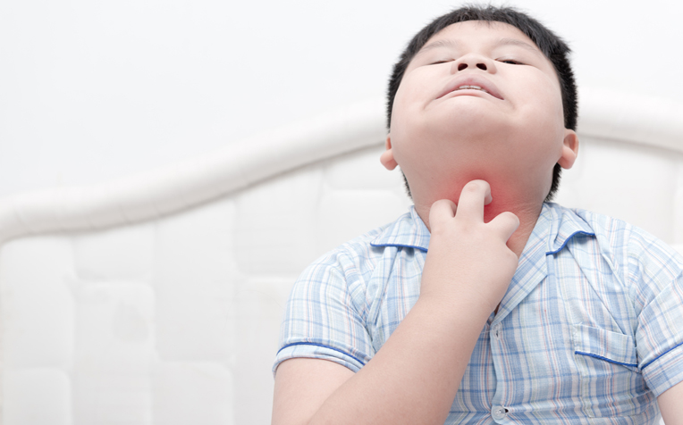 Food Allergy Symptoms in Children