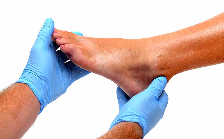 Go for a yearly Diabetic Foot Screening at the polyclinic, GP clinic or hospital