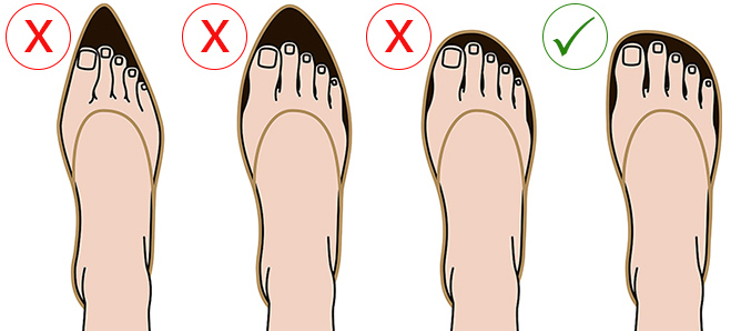 Avoid narrow-fitting shoes
