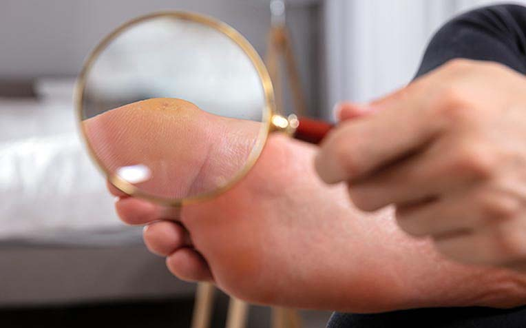 Diabetes Foot Care: How to Check Your Feet