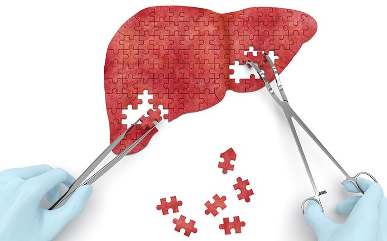 ​​Liver Cirrhosis Treatment and Transplant