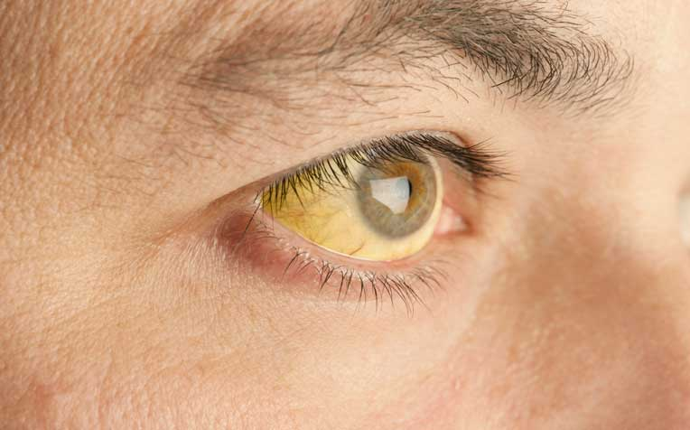 Obstructive Jaundice: What Causes It?