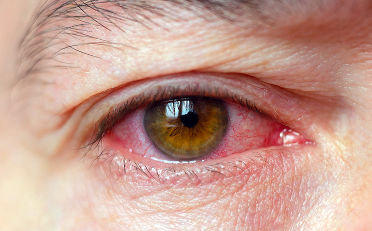 ​What Causes Ocular (Eye) Inflammation?