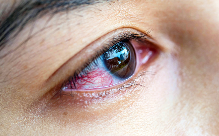 ​Ocular Inflammation and Immunology