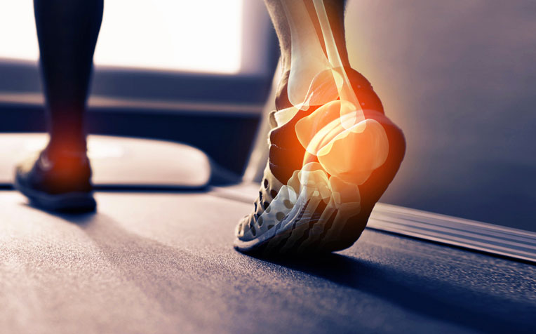 How to Treat Common Running Injuries: Thigh and Heel Pain