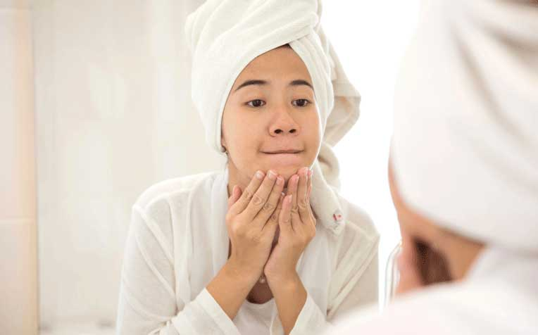 ​W​hat Causes Acne and Pimples in Teenagers?