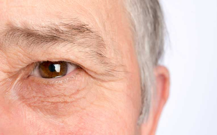 ​What is Age-Related Macular Degeneration (AMD)?