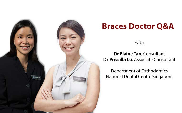 Ask the Specialist on Braces