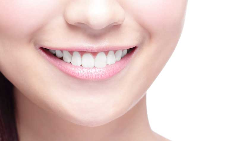 /sites/hexassets/Assets/head-neck/diy-teeth-whitening-what-you-should-know.jpg
