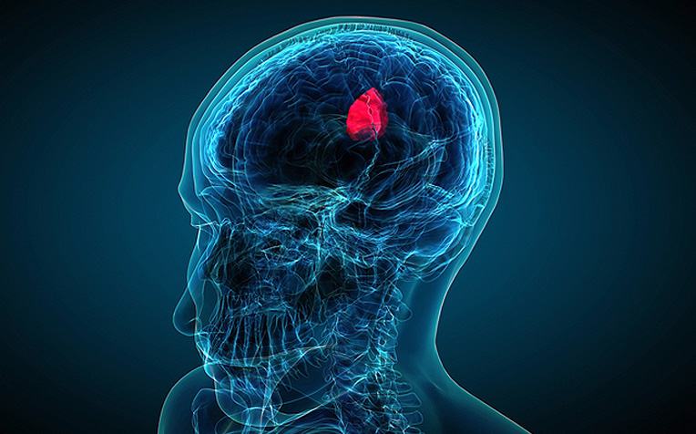​Basics of Brain Tumour