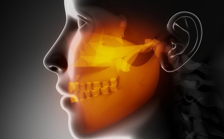 Jaw Abnormality and Jaw Surgery Q&A