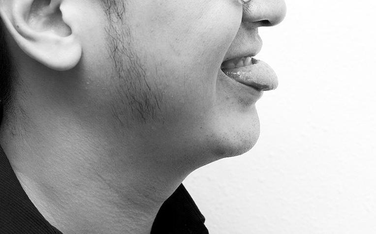 Swallowing Exercises Masako Maneuver