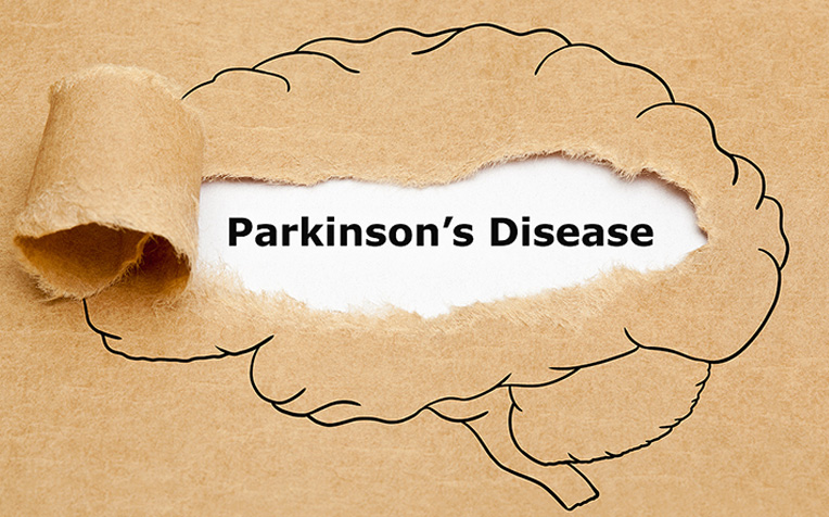​Myths About Parkinson's