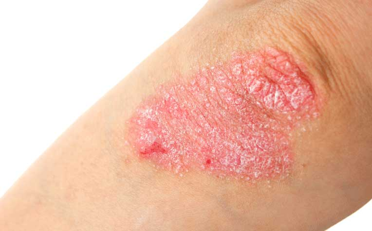 ​​​Psoriasis: Treatment