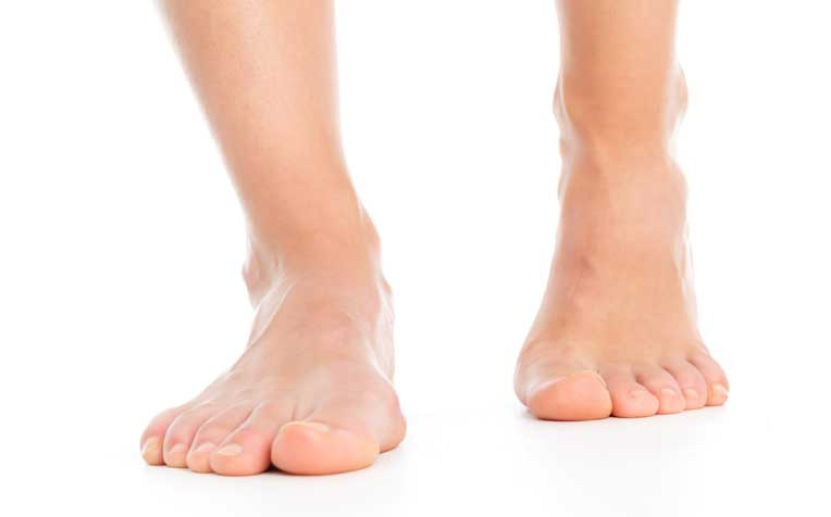 Sensory Peripheral Neuropathy: Signs and Symptoms