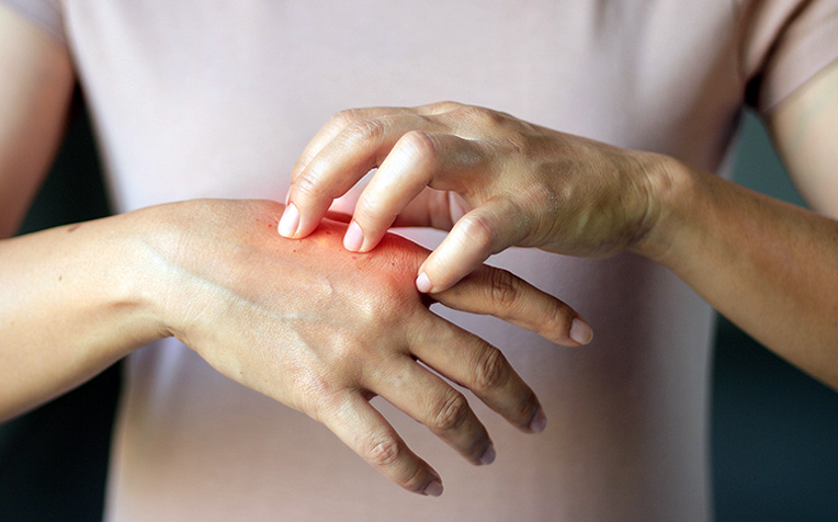 What Is Systemic Sclerosis?