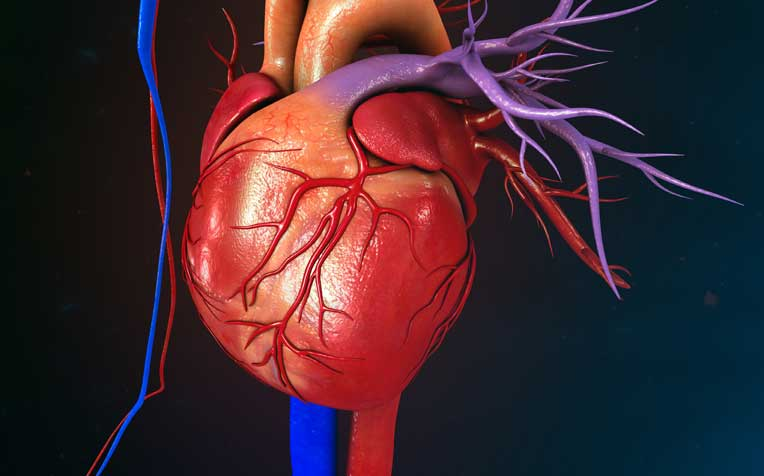 Aortic Dissection: Risk Factors and Symptoms