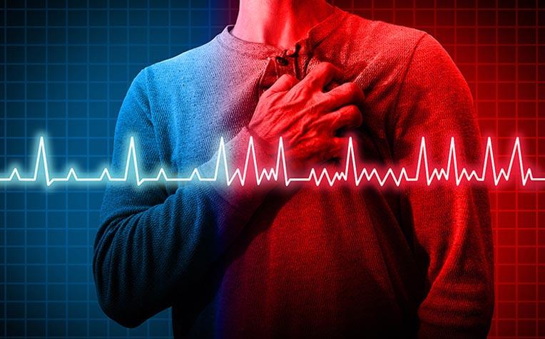 How Arrhythmia (Irregular Heartbeat) Kills