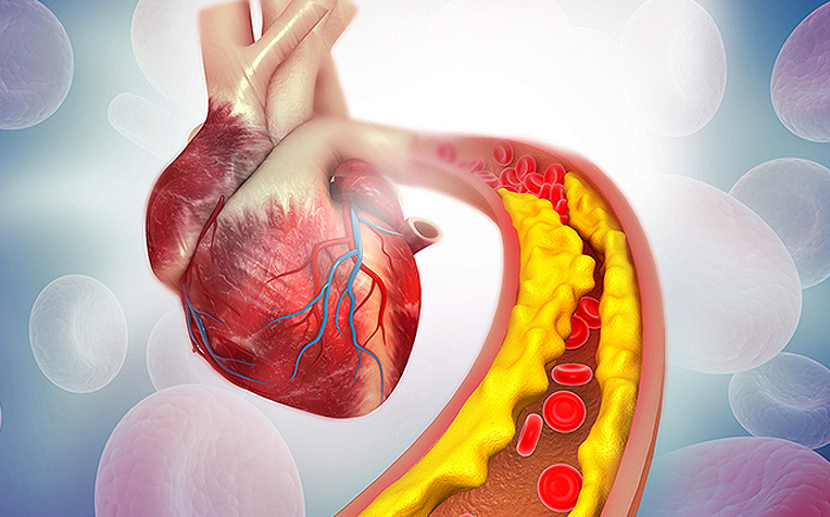 ​Atherosclerosis (Plaque Buildup) and Heart Attack