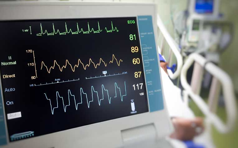 ​Cardiac Tests: Electrocardiogram and Exercise Stress Test