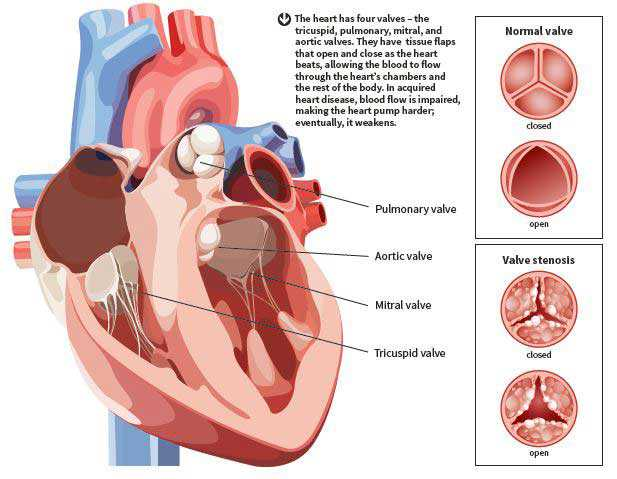 Acquired Heart Valve Disease Symptoms: Tiredness, Chest Pain ...