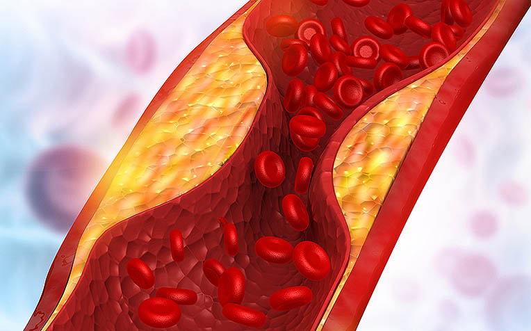 How Triglycerides Affect Your Heart