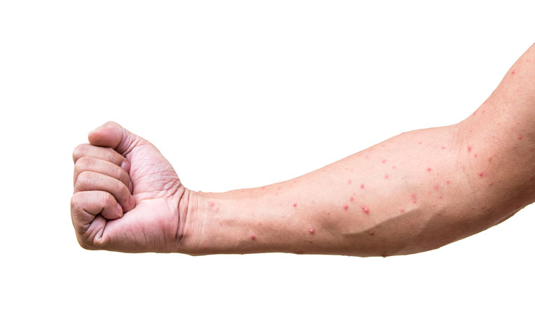 ​Chicken Pox In Adults Symptoms and Complications