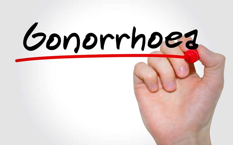 ​Gonorrhoea Causes, Symptoms, Treatment​