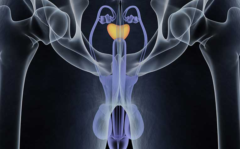 ​Prostate Cancer - Doctor Q&A