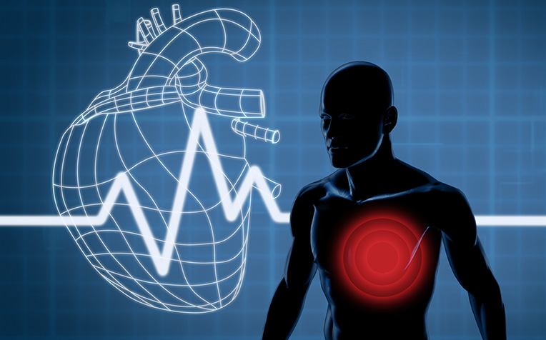 Atrial Fibrillation: What are the risk factors?