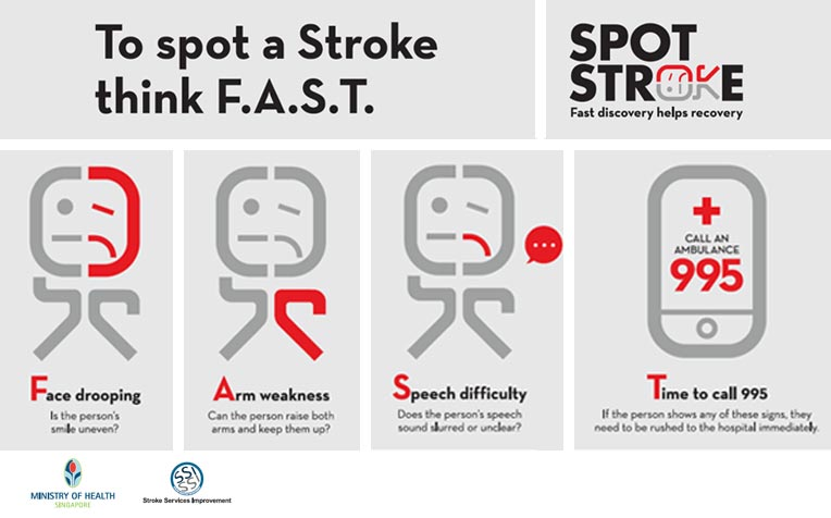 ​Think FAST to Spot a Stroke