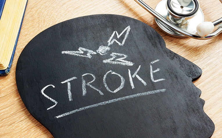 ​When Stroke Strikes During Sleep