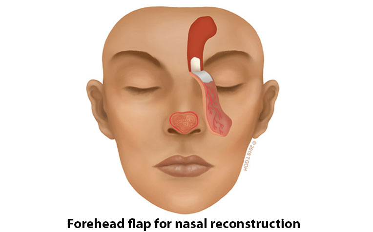 Forehead flap for nasal reconstruction