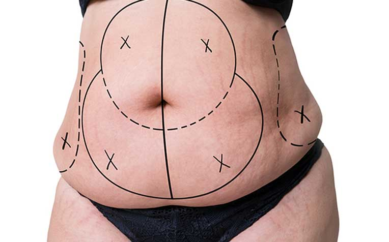 ​Liposuction All You Need to Know