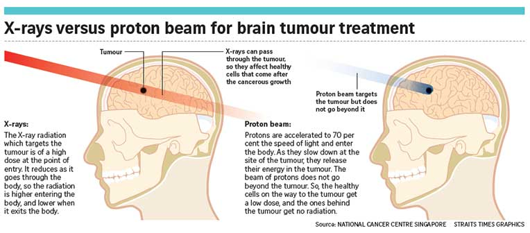 Proton Beam Therapy System to Treat Cancer With Less Harm